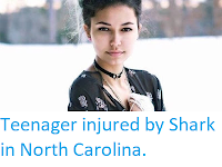 https://sciencythoughts.blogspot.com/2019/06/teenager-injured-by-shark-in-north.html