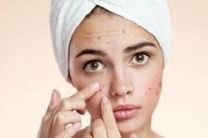 Acne Skin Care The Safest Way To Remove Pimples Naturally