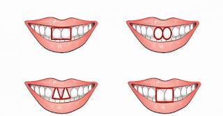 Είναι πολύ απλό να Εντοπίσετε έναν Εγωιστή. Απλά ρίξτε μια Ματιά στα Μπροστινά του Δόντια!