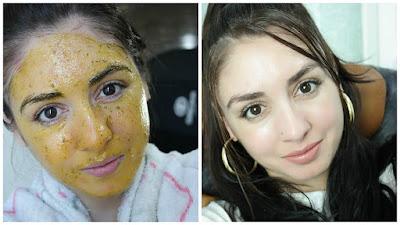 pele sem manchas, ácido glicólico, como tratar manchas da pele, clarear a pele, sabonete clareador, rotina de cuidados com a pele