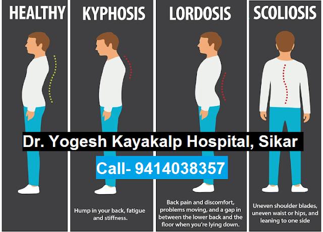 Spinal Deformities- Kyphosis, Scoliosis & Lordosis