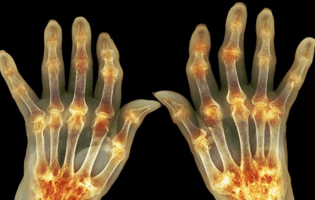 كيفية علاج التهاب المفاصل وما هي أسبابه وأعراضه وطرق الوقاية منها