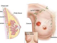 Cara Mengobati Kanker Payudara Stadium 3