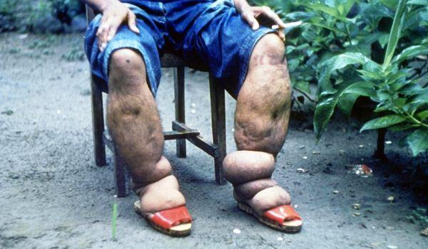 Penyakit kaki gajah