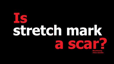 Is stretch mark a scar? | Healthbiztips