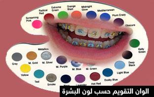 الوان تقويم الاسنان 2020