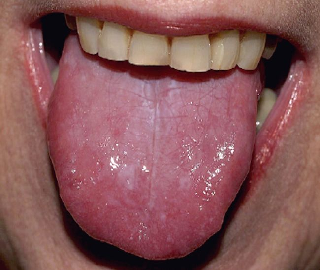 Lesions Tongue