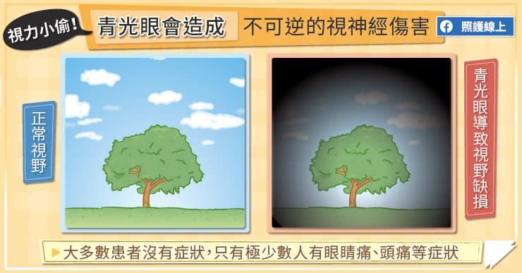 青光眼種會造成視神經不可逆的傷害