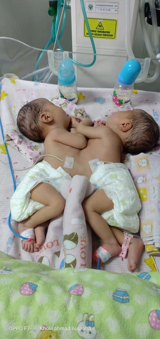 "Bantu Hasna dan Husna ""Bayi kembar siam"" Mekarmukti Kuningan"