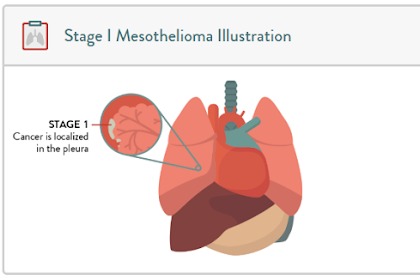 What Should We Do in Stage 1 Mesothelioma Cancer