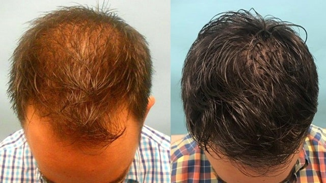 easy ways to combat hair loss treat balding