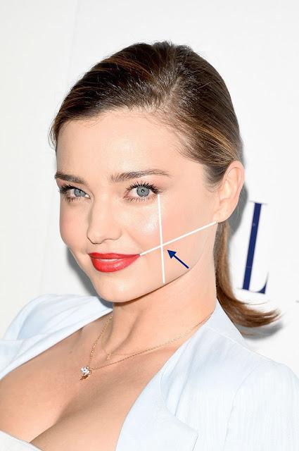 Dimple surgery, Dr. shazia ali