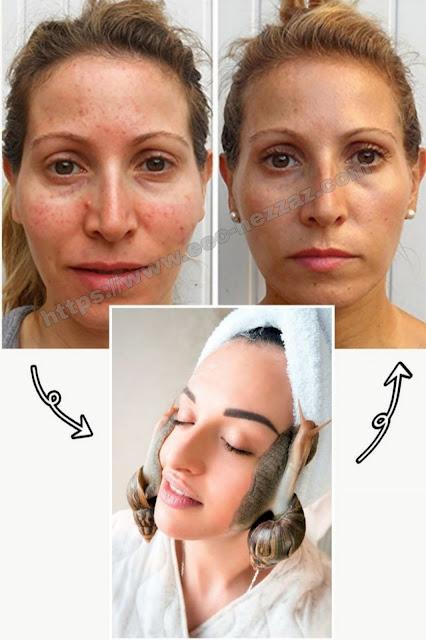 Avez-vous déjà essayer un traitement facial aux escargots?