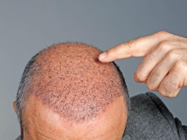 hair doctor in kolkata