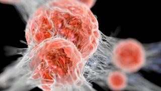 10 Obat Kanker Terpopuler dan Terlaris di Dunia