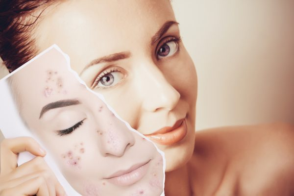 Deretan Skincare Untuk Menghilangkan Jerawat