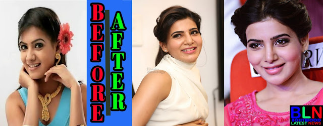 SAMANTHA PRABHU Bollywood Actresses Before and After Plastic Surgery