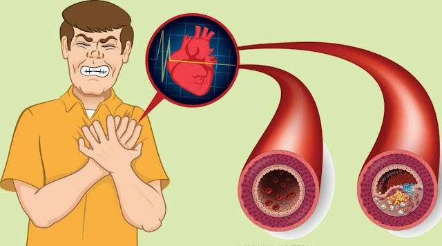 9 Foods That Clean Your Arteries And Prevent Heart Attacks