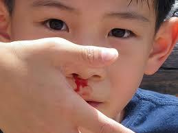 Petua Elak Hidung Berdarah
