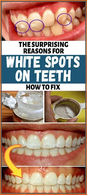 The Surprising Reasons for White Spots On Teeth