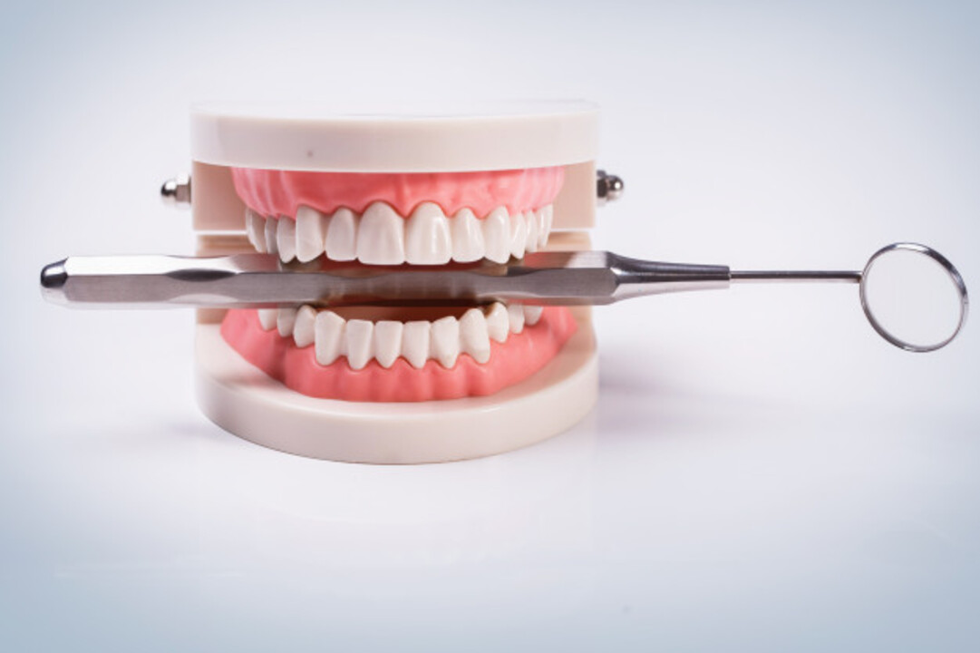 Hukum Memakai Gigi Palsu