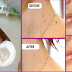 Ways In Order To Get Rid Of Having Problems In Warts, Moles, Pimples and Age Spots