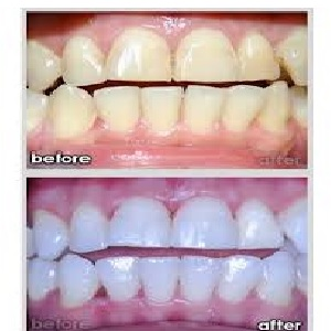 beauty, whiten your teeth, teeth whitening products