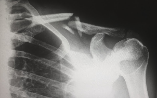 X-Ray Image of a Shoulder