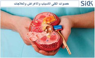 حصوات الكلى الاسباب والاعراض والعلاجات