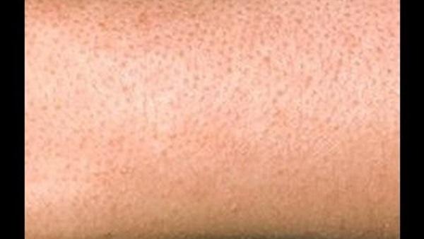 طرق التخلص من جلد الوزه بالوصفات الطبيعيه