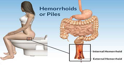 What Causes Hemorrhoids Symptoms and Treatment