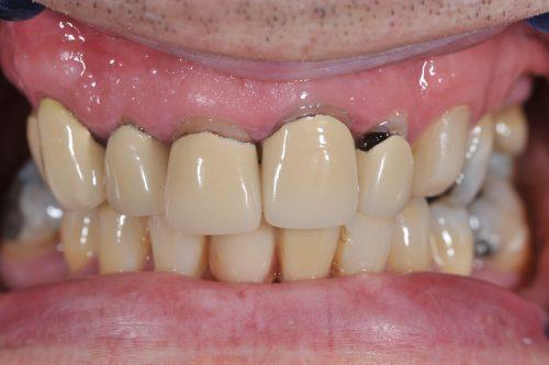 black line of pfm dental crown after gum recession