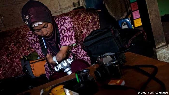 Kisah Fotografer Inspiratif Tanpa Jari Sempurna