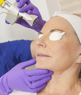 Can Laser Treatment Remove Acne Scars Effectively?