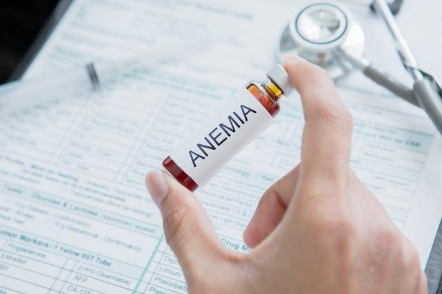 Cara Efektif Mencegah Anemia secara Aman