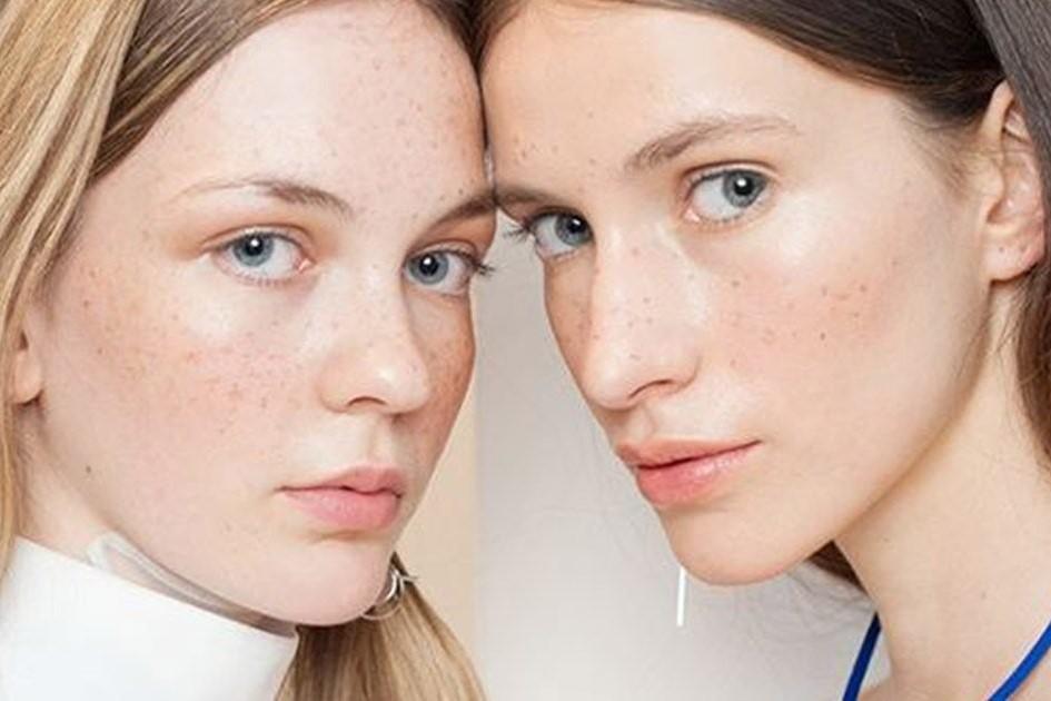 Vì đâu nám da và tàn nhang xuất hiện trên da bạn?