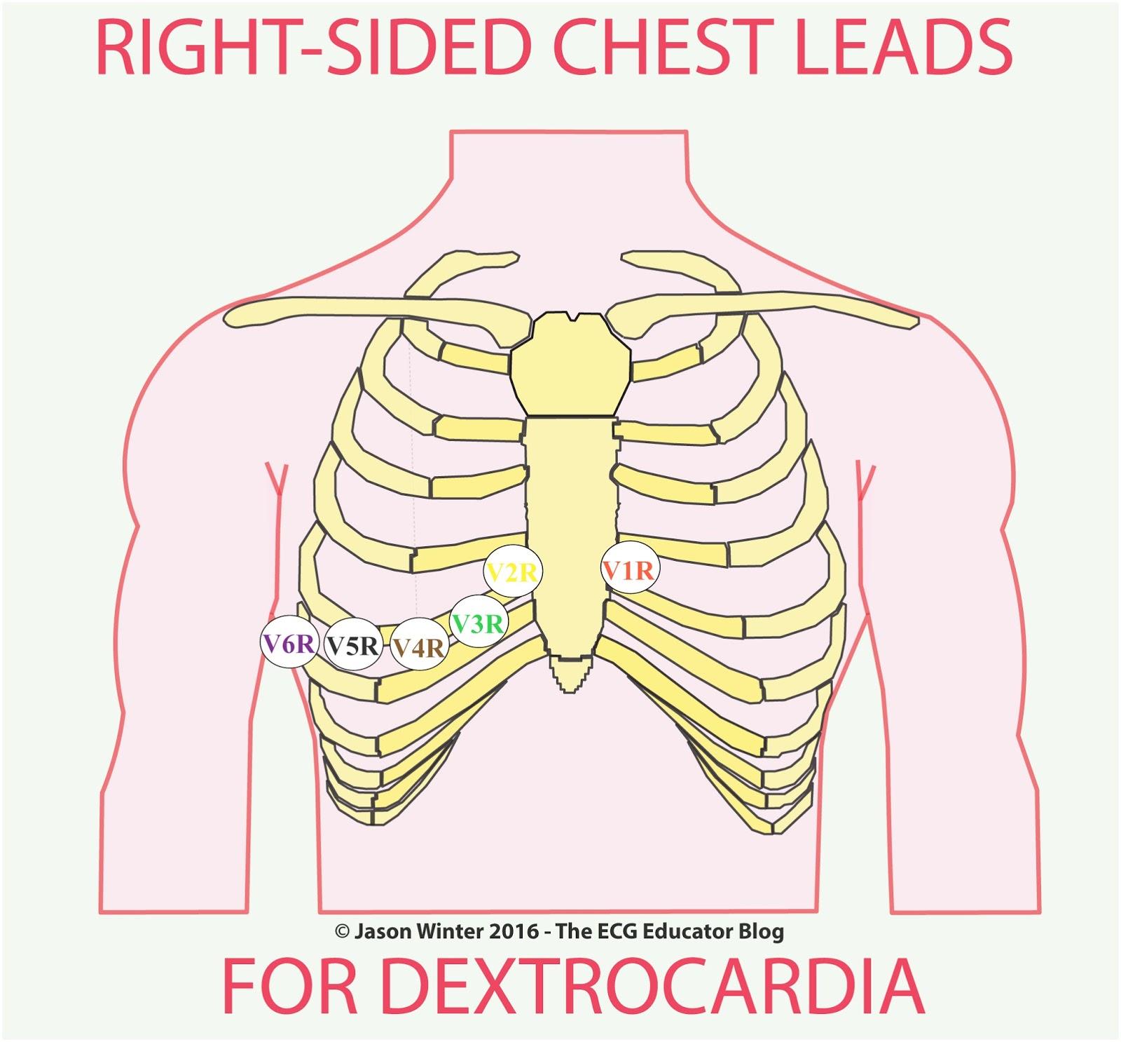 Ecg Educator Blog   Dextrocardia