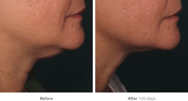 Ultherapy-Before-And-After-Chin-And-Jaw
