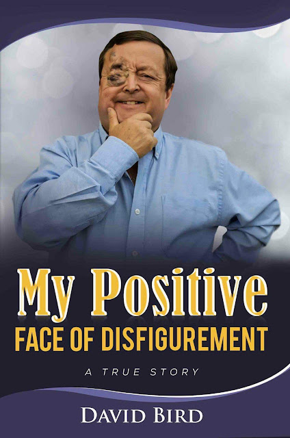 My Positive Face of Disfigurement - Book Cover Image pic
