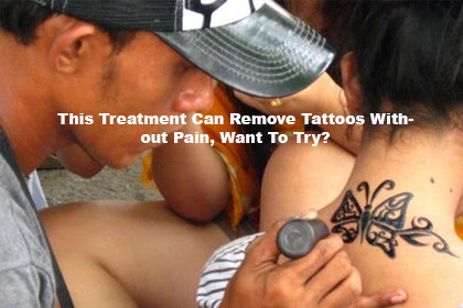 This Treatment Can Remove Tattoos Without Pain, Want To Try?