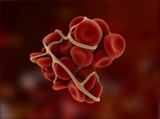 हीमोफिलिया का उपचार