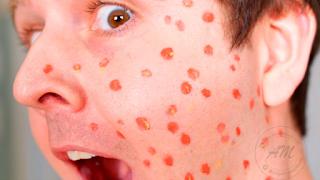Tips Bila Terkena Chickenpox