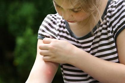7 Cara Mengatasi Gigitan Serangga Pada Anak Yang Paling Praktis