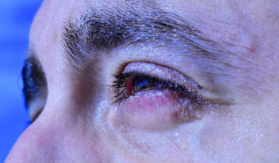 Lagrimeo por ojo seco