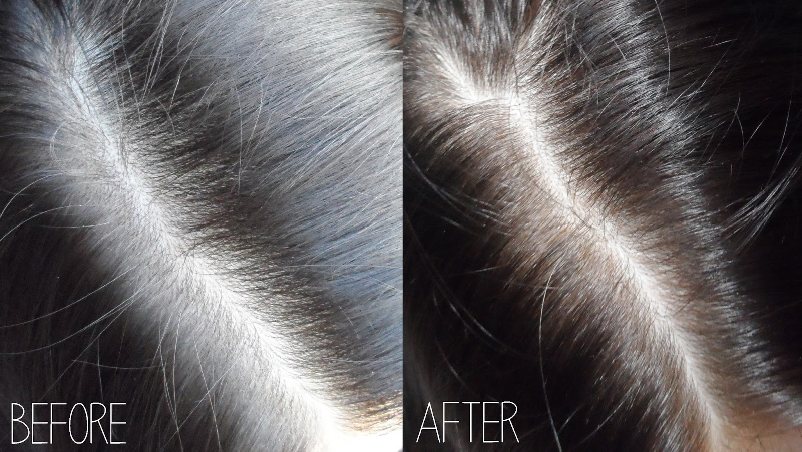 hair growth serum before after pictures liz breygel blogger