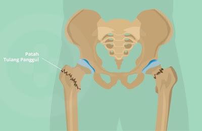 Testimoni OsteMatrix: Tulang Pinggul Tumbuh Selepas 2 Minggu