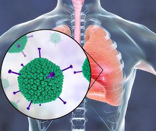 Mengetahui Gejala Pneumonia pada Anak