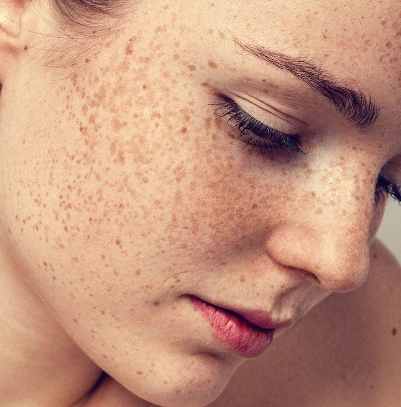 Causes of Dark Skin Pigmentation