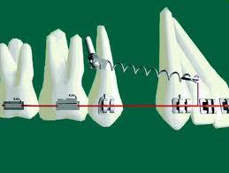 ubicacion de microimplantes dentales