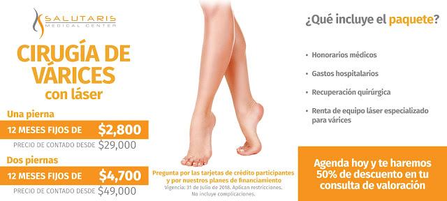 Precio de tratamiento para varices con laser en Guadalajara